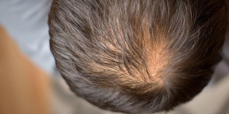 Caduta dei capelli  può essere ereditaria   8153cb739a85