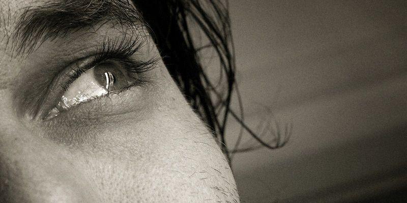 Dermatite Seborroica Provoca La Caduta Dei Capelli Prontocapelli