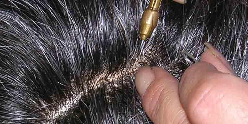 Protesi capelli uomo manutenzione